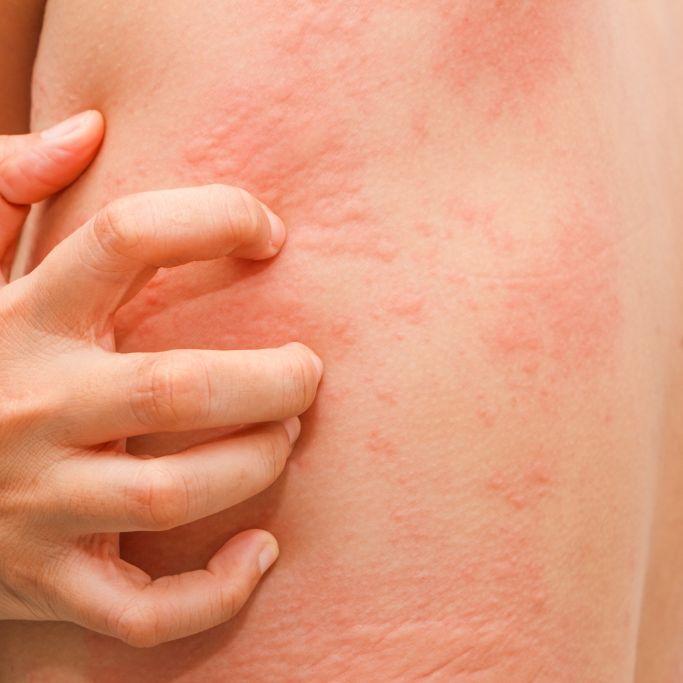 Zeigen DIESE Symptome Covid-19 schon vor Krankheitsausbruch an? (Foto)