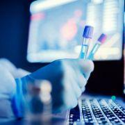 Deutscher Professor sicher: Sars-CoV-2 wurde im Labor gezüchtet (Foto)