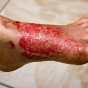 Gefährliche Nebenwirkung! Haut von Frau stirbt ab - Koma (Foto)