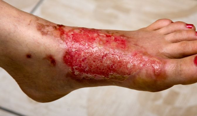 Toxische epidermale Nekrose