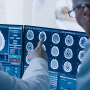 Eine unbekannte Gehirnerkrankung besorgt gerade kanadische Neurologen. (Foto)