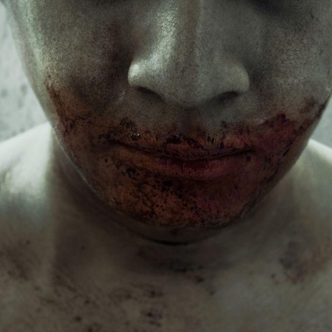 """""""Miami Zombie"""" beißt Obdachlosem Nase und Auge ab (Foto)"""
