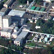 83 Tage Todes-Qualen! Nuklear-Techniker weinte Blut und seine Haut schmolz (Foto)