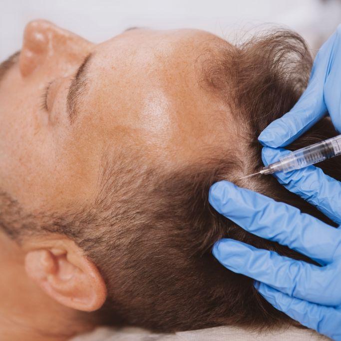 Mann (28) stirbt während Haartransplantation (Foto)