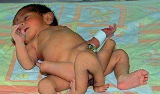 Ärzte wollen das Baby mit sechs Beinen nun operieren. (Foto)