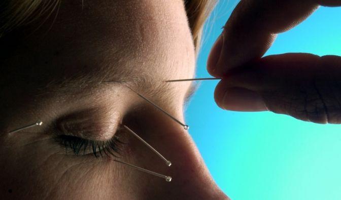 Akupunktur (Foto)