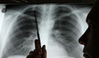 Atemluft gibt Hinweise auf Lungenkrebs (Foto)
