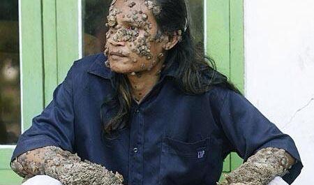 Wasserallergie Haut