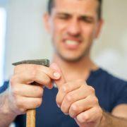 Beim Aufhängen eines Bildes mit dem Hammer abgerutscht: Ein lädierter Finger wird nun am besten gekühlt. (Foto)