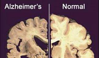Bis 2050 wird sich die Zahl der Alzheimer-Patienten weltweit verdreifachen. (Foto)