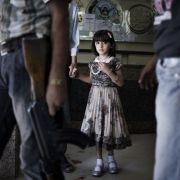 Blicke voller Angst, der Boden blutverschmiert: Ein Bild aus dem syrischen Bürgerkrieg wurde zum «Foto des Jahres» gekürt.