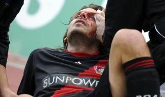 Blutiges Spiel: Leverkusens Manuel Friedrich nach einem Ellbogencheck. (Foto)