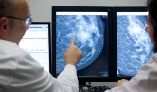 Brustkrebs gehört zu den häufigsten Krebserkrankungen in Deutschland. (Foto)