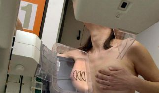Brustkrebs ist die häufigste Krebserkrankung bei Frauen (Foto)