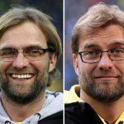 BVB-Trainer Jürgen Klopp hat sich einer Haartransplantation unterzogen.