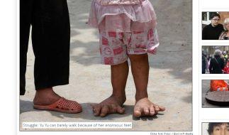 Der britische Daily Mirror berichtet über die riesigen Füße des kleinen Mädchens. (Foto)