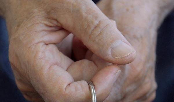 Diagnose Alzheimer (Foto)