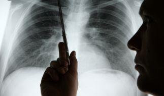 Diagnose Lungenkrebs: Je früher Krebserkrankungen erkannt werden, desto besser lassen sie sich behandeln. (Foto)