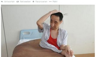 Diesem Mann wurde ein 110 Kilogramm schwerer Tumor entfernt. (Foto)