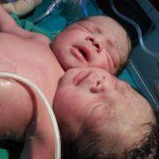 Dieses Baby mit zwei Köpfen kam im März 2014 in Indien zur Welt.