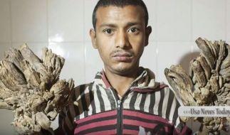 """Ein junger Mann mit der """"Baum-Mann-Krankheit"""" soll in Bangladesch operiert werden. (Foto)"""