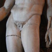 Ein kleiner Schnitt für den Arzt, ein großer Schritt für den Mann: Die Vasektomie als äußerste Verhütungsart.