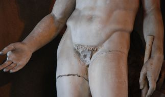Ein kleiner Schnitt für den Arzt, ein großer Schritt für den Mann: Die Vasektomie als äußerste Verhütungsart. (Foto)
