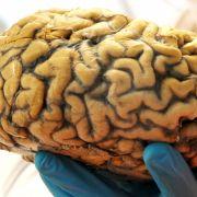 Ein Wissenschaftler hält am 21. Februar 2013 im Institut für Anatomie der Universität Leipzig (Sachsen) ein menschliches Gehirn in seiner Hand. (Foto)