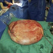 Einer Frau in Erlabrunn ist ein 10 Kilo schwerer Tumor aus der Gebärmutter entfernt. (Foto)
