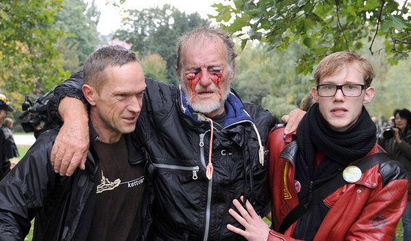 Er ist lebendes Symbol der Eskalation zwischen Stuttgart 21-Gegnern und der Polizei: Dietrich Wagner wird lebenslang auf einem Auge blind bleiben – durch den scharfen Strahl eines Wasserwerfers. (Foto)