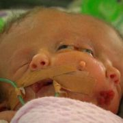 Faith and Hope nannten die Australier Renee Young und Simon Howie ihr Baby, das im Mai 2014 mit zwei Gesichtern zur Welt kam.