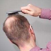 Geheimratsecken, schütteres Haar - viele Männer kämpfen mit Haarausfall.