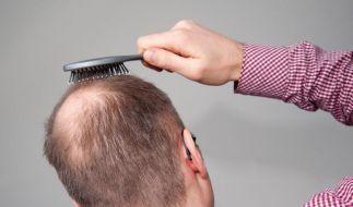 Geheimratsecken, schütteres Haar - viele Männer kämpfen mit Haarausfall. (Foto)
