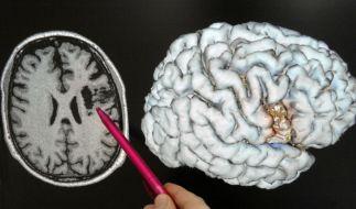 Gehirn (Foto)