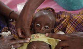 Gesicht der Hungersnot (Foto)
