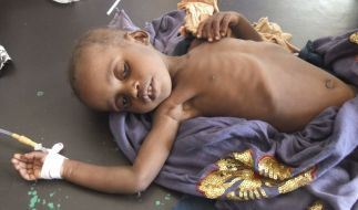 Hunger in Somalia (Foto)