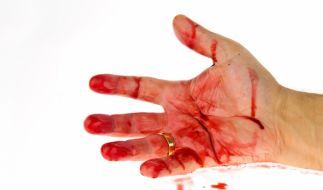 Im Blutrausch hat eine Pflegerin ihre Patientin totgebissen. (Foto)