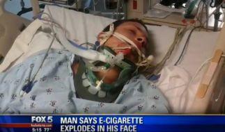 James Lauria hätte das Rauchen einer E-Zigarette beinahe mit seinem Leben bezahlt. (Foto)