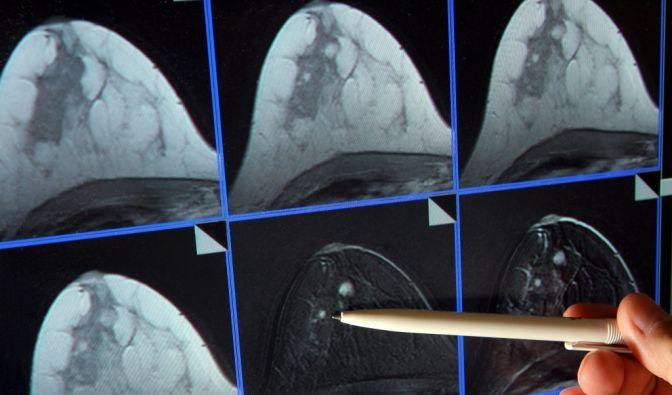 Je früher eine Krebserkrankung erkannt wird, desto größer sind meist die Heilungschancen. (Foto)