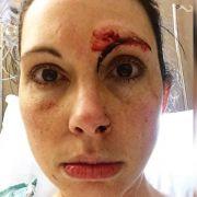 Unter Todesangst! Joggerin verprügelt Vergewaltiger (Foto)