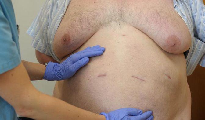 Knapp ein Viertel der Männer und Frauen ist einer neuen Studie zufolge mit einem Body-Mass-Index von über 30 fettleibig. (Foto)