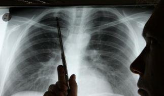 Krebsdiagnose  (Foto)