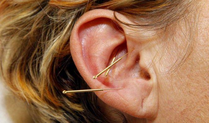 Männer vertrauen seltener auf Akupunktur (Foto)