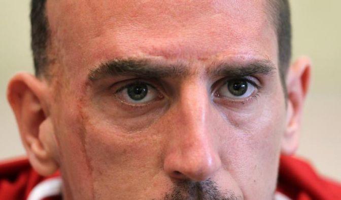 Magath fürchtet Bayern-Star Ribéry (Foto)