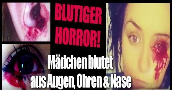 Blutiger Horror: Dieses Mädchen blutet immer wieder aus