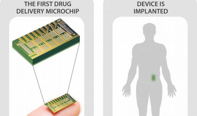 Medizin-Mikrochip an Osteoporose-Patientinnen getestet (Foto)