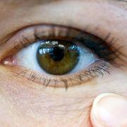 Mit offenen Augen durchs Leben gehen: Viele Betroffene müssen damit nach einer verpatzten Lidkorrektur leben.
