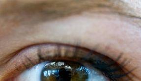 Mit offenen Augen durchs Leben gehen: Viele Betroffene müssen damit nach einer verpatzten Lidkorrektur leben. (Foto)