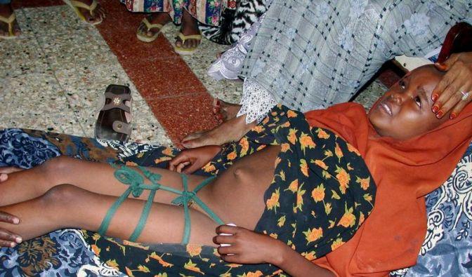 Neue OP-Technik verbessert Leben von verstümmelten Frauen (Foto)
