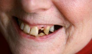 Schlechte Zähne oder gar keine Beißer mehr: Der desolate Zustand vieler Senioren ist alarmierend. (Foto)